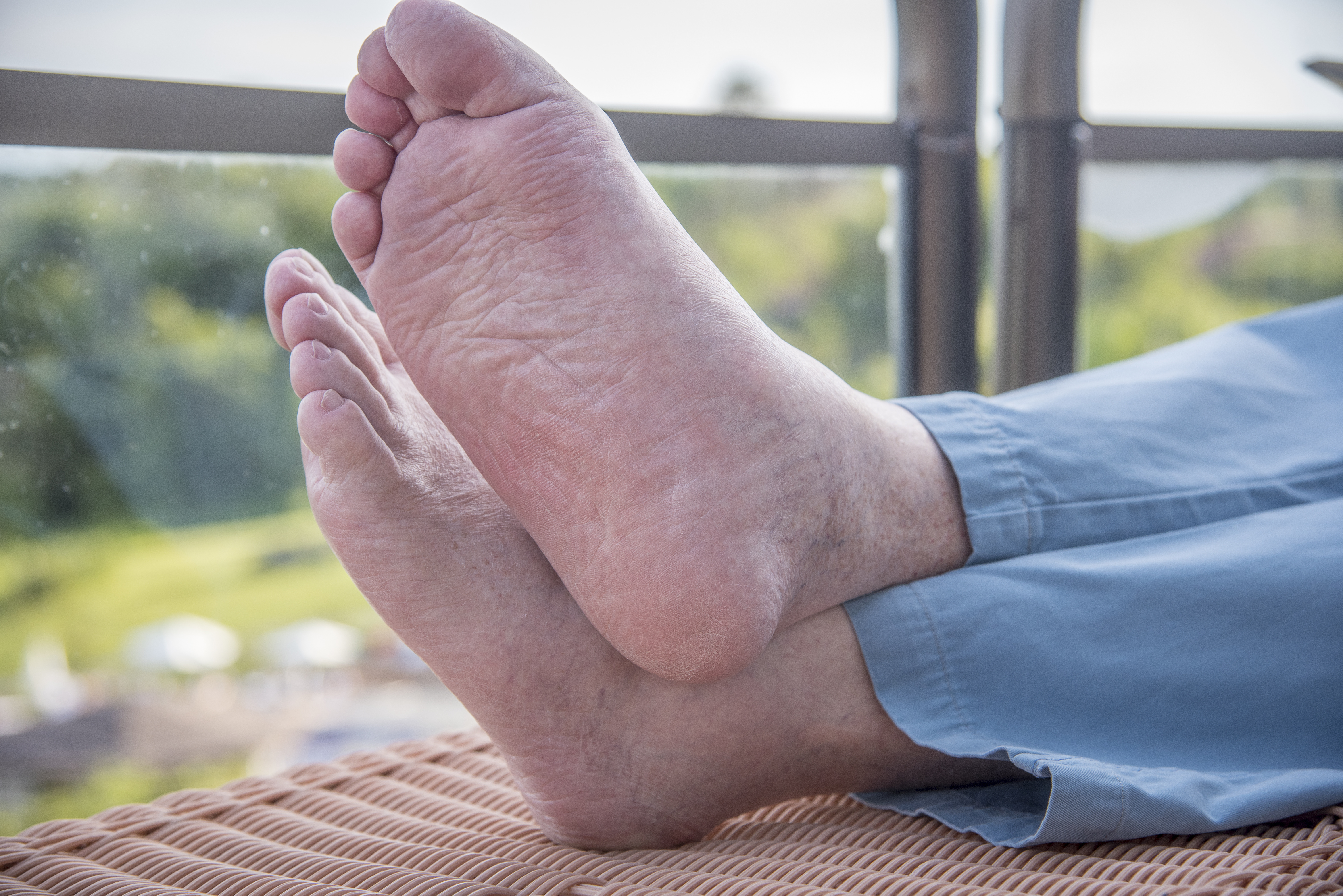 Study links flat feet to painful foot maladies