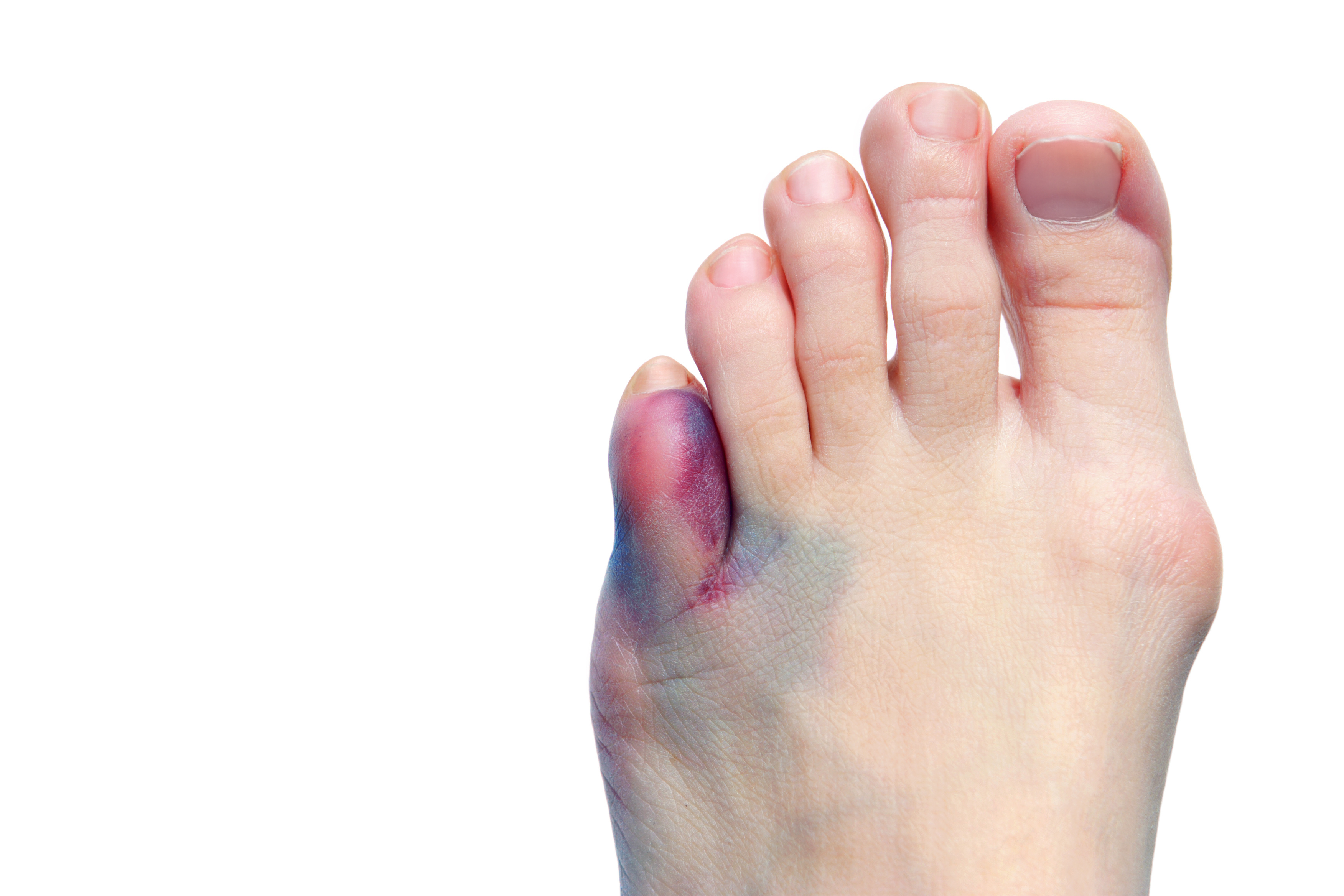 From bunions to broken toes, local foot and ankle surgeon has heard it all
